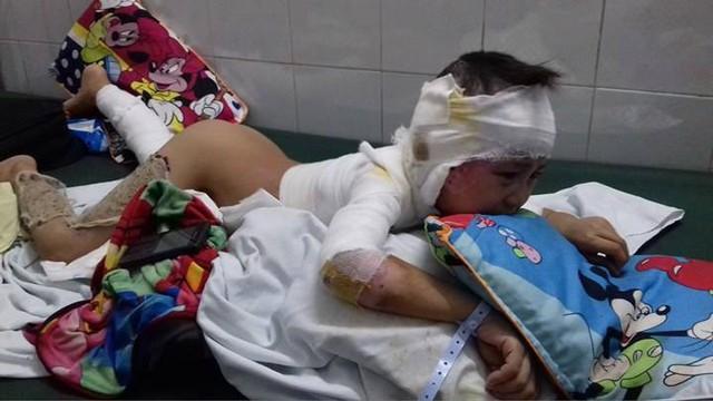 Gia cảnh đáng thương của bé trai 7 tuổi bị bỏng nặng khi ngã vào bãi rác