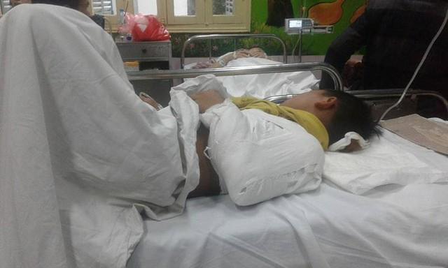Một học sinh khác là bé Kh. đã được bó bột bả vai.