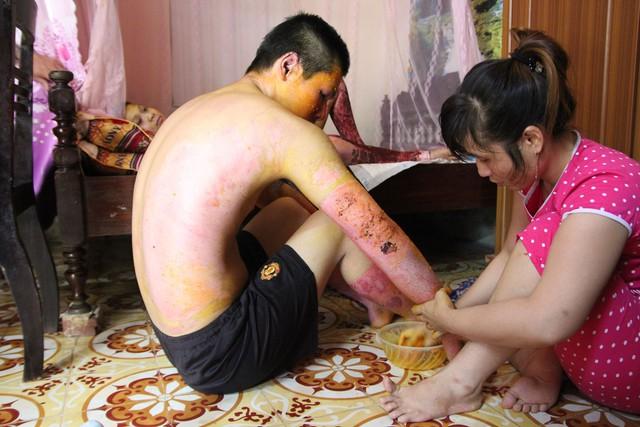 Không có tiền điều trị, các nạn nhân được đưa về nhà điều trị tại nhà theo phương pháp dân gian.