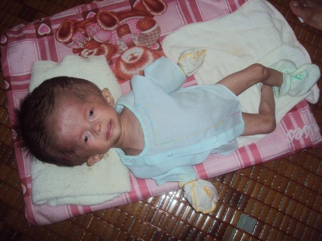 3 tháng tuổi đầu Bảo Anh ngày càng to trong khi chân tay cứ gầy nhòm