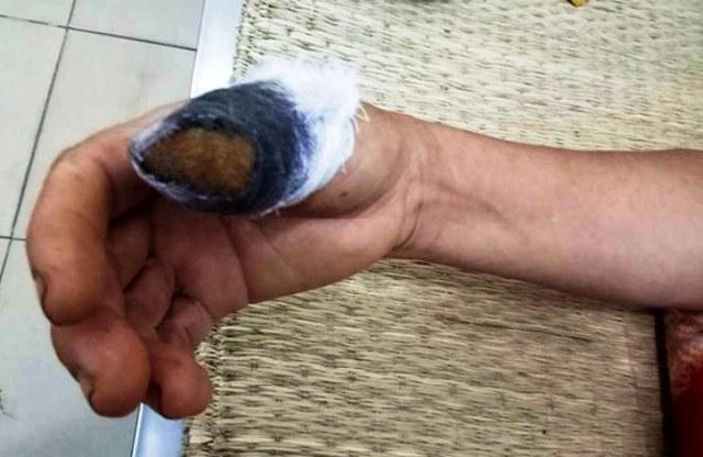 Ngón tay cái của bà Công phải bị tháo khớp.