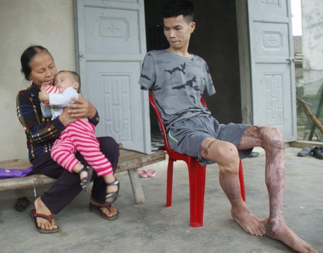 Bà Nguyễn Thị Đường vừa chăm cháu và lo cho con. Ảnh: V.Đồng