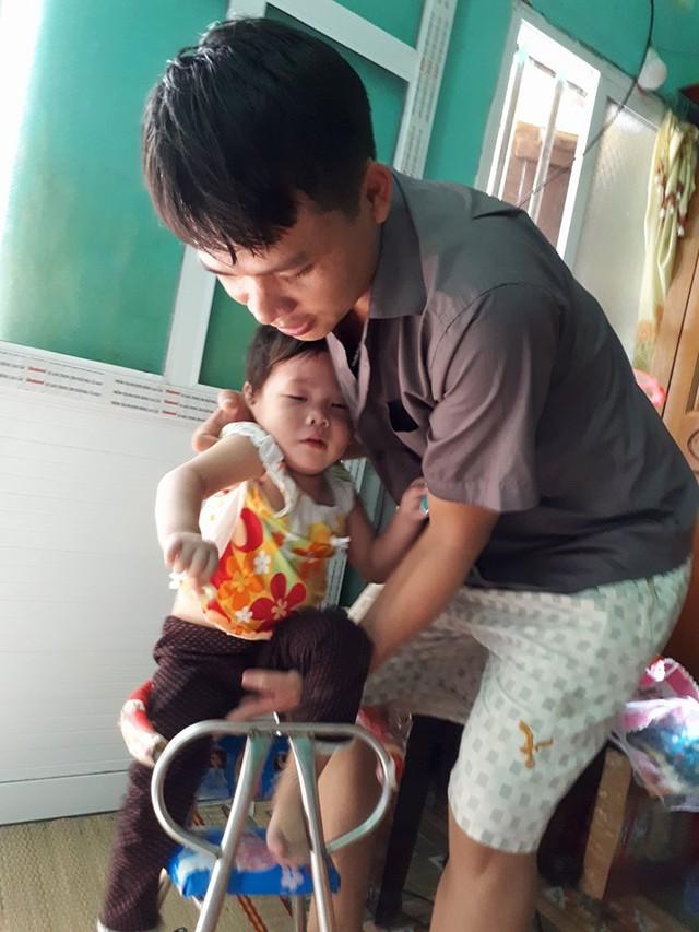 Mắc bệnh teo cơ tủy, bé Hòa 23 tháng tuổi vẫn chưa tự ngồi được. Ảnh PT