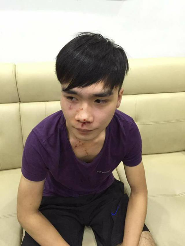 Nạn nhân bị hành hung được nhiều người ở tòa HH1B mô tả là hiền lành, không va chạm với ai (ảnh do người dân cung cấp)