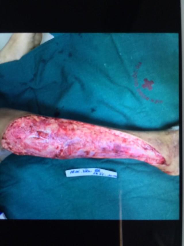Hình ảnh tổn thương của bé Chiến khi vào viện. Ảnh BSCC