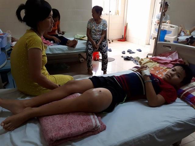 Chị Phương lo lắng về chi phí điều trị cho con tới đây và luôn mong con giữ được lại chân. Ảnh PT