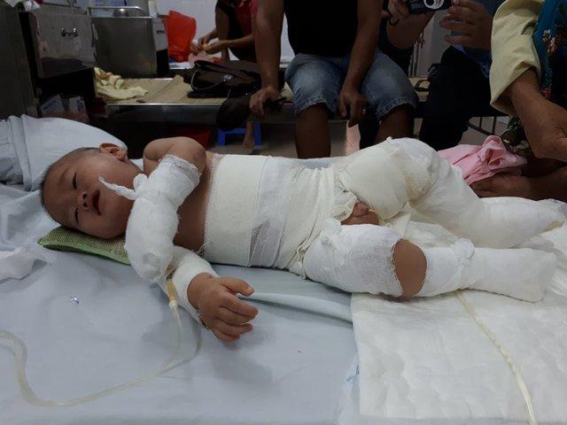 Toàn thân bé quấn băng trắng nằm đau đớn trên giường bệnh. Ảnh PT