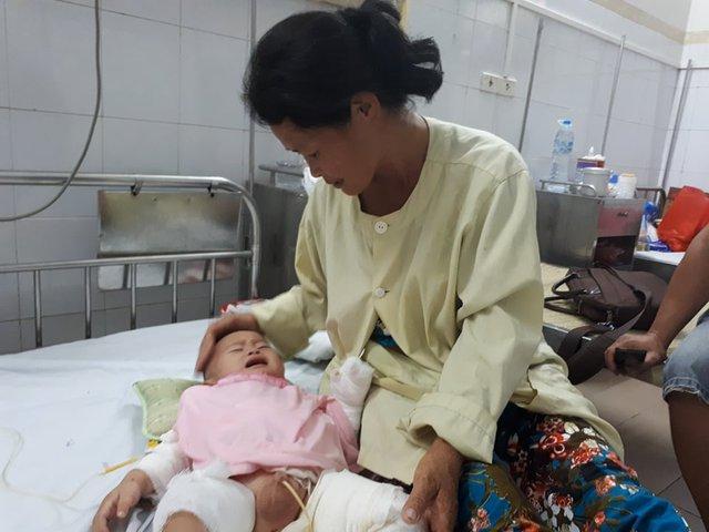 Chị Hưởng bị câm điếc nên khi bé Lịch bị bỏng không nghe thấy khiến vết bỏng càng nặng hơn. Ảnh PT