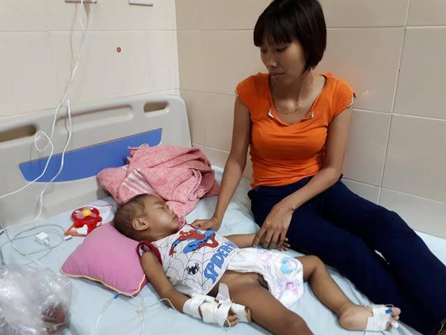 Việc điều trị của Việt còn dài, rất mong sự giúp đỡ của bạn đọc. ảnh PT