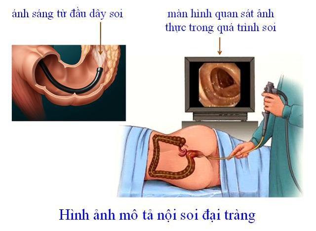 Nên đi sàng lọc nội soi đại tràng để phát hiện sớm bệnh. Ảnh: T.L