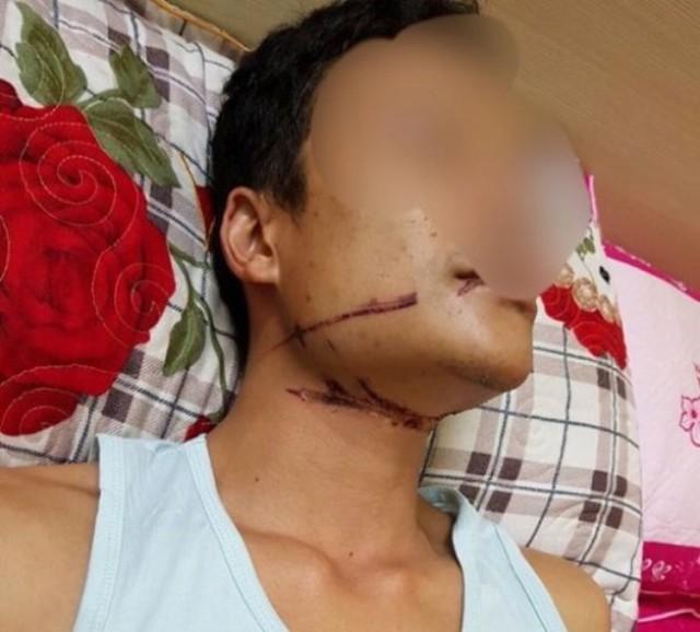 Viết siết trên cổ của anh Tuấn do dây cáp viễn thông gây ra. Ảnh: (Nhân vật cung cấp)