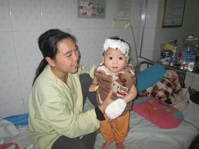 Đã hơn 1 tháng nay con trai T. điều trị tại Viện Bỏng Quốc gia. Ảnh: Ngọc Thi