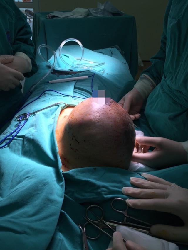 Các bác sĩ đã phẫu thuật cắt thành công khối u Phyllode cho bệnh nhân G.