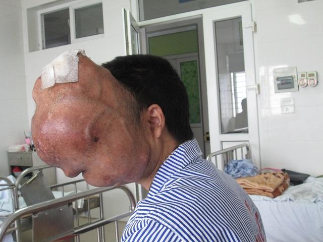 Khối u rất to chèn hết một nửa khuôn mặt của anh Xiên.