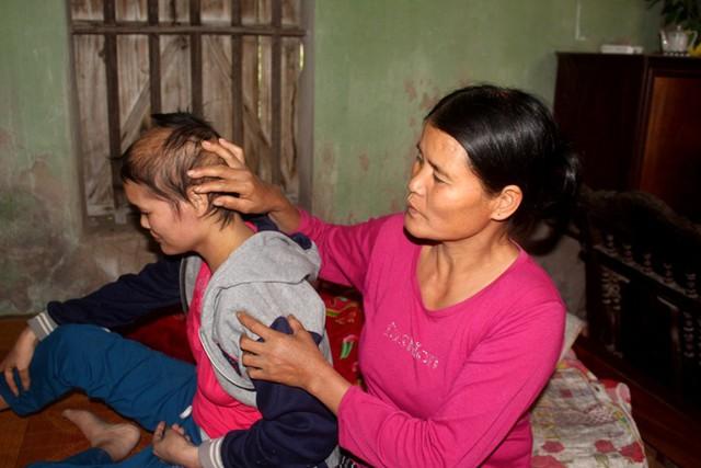 Bà Tuyết đớn đau nhìn con gái đang giành giật sự sống từ căn bệnh tử thần. Ảnh: Đ.Tùy