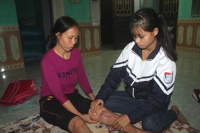 Sau khi tai nạn, chị Sinh không đi lại được, chân cứng và có người chăm sóc. Ảnh: Đức Tùy
