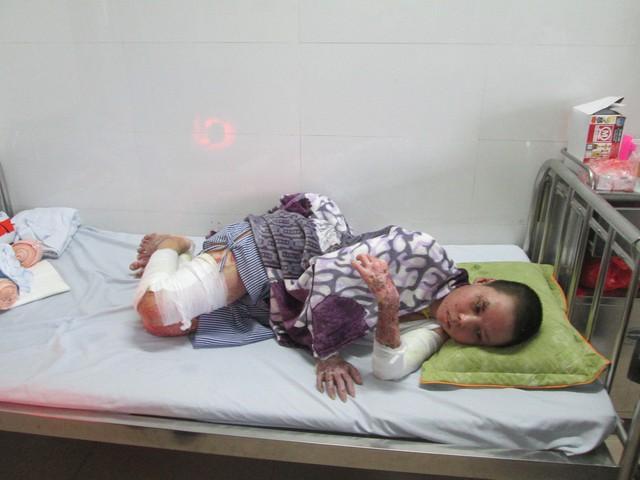 em Phan Thị Thu Lành (thôn Nam Nghĩa, xã Nam Đà, huyện Krông nô, tỉnh Đắk Nông) hiện đang được chữa trị tại Viện bỏng Quốc gia. Ảnh: Ngọc Thi