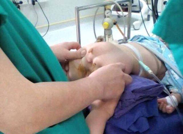 Hình ảnh bé Minh bị dị tật bẩm sinh, trong đó không có hậu môn. Ảnh: Đ.Tuỳ