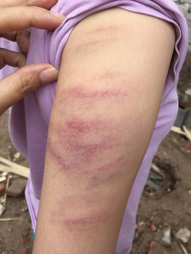 Những vết bầm tím trên cánh tay cháu Y vì bị cô giáo dùng thước đánh.