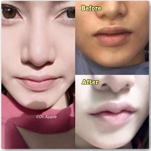 Nhiều cô gái mạnh tay chi tiền để sở hữu đôi môi sừng trâu.