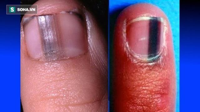 Ngón tay trỏ và ngón chân cái thường là những ngón xuất hiện sọc đen hoặc nâu nhiều nhất