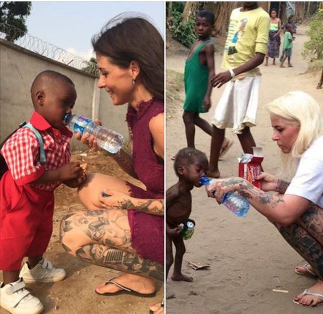 Hình ảnh trước và sau 1 năm được cứu sống của cậu bé Nigeria.