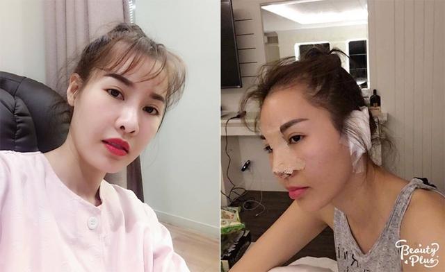 Nữ ca sĩ lúc trước và lúc sau ca thẩm mỹ lần thứ hai.