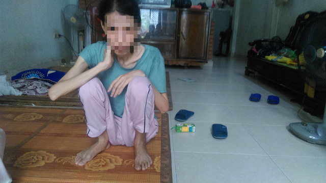 Trước đây chị Nguyễn Thị Điệp nặng 50kg, hiện tại chị nặng 33kg. Ảnh: Ngọc Thi