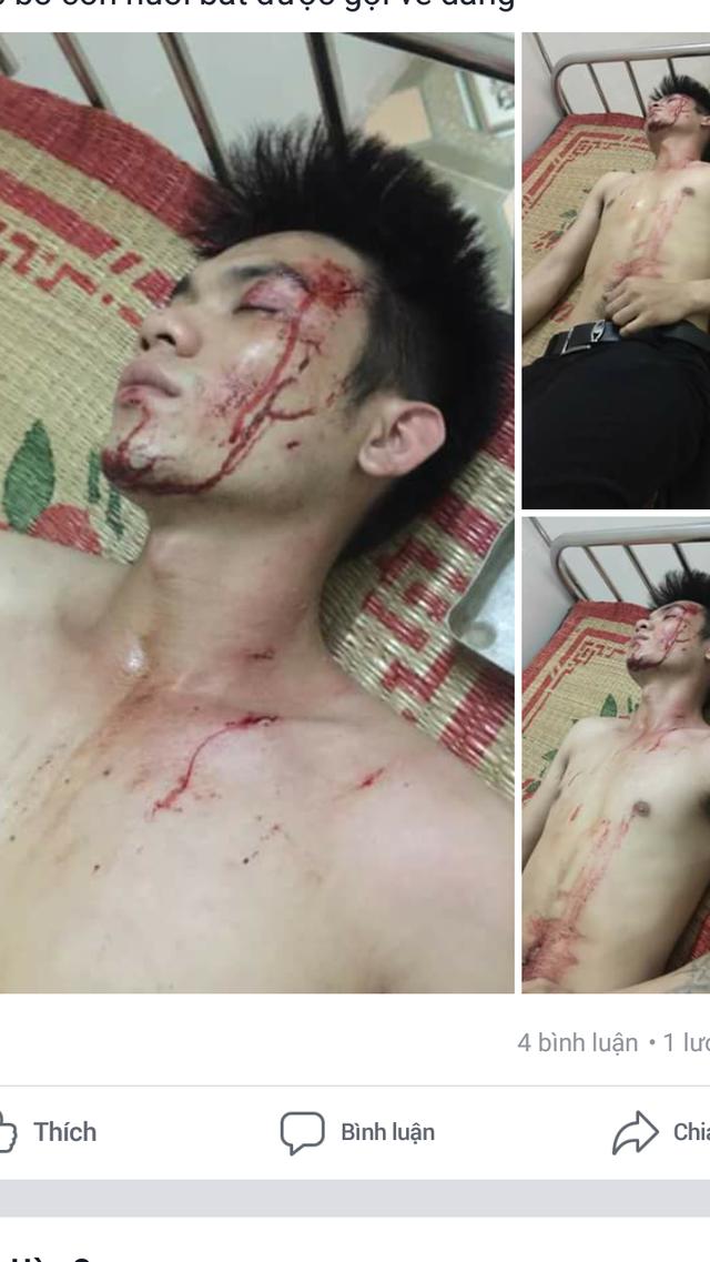 Nam thanh niên được cho là H., con nuôi ông P., bị cho là bị ông P. đánh (ảnh: Facebook H.Q)