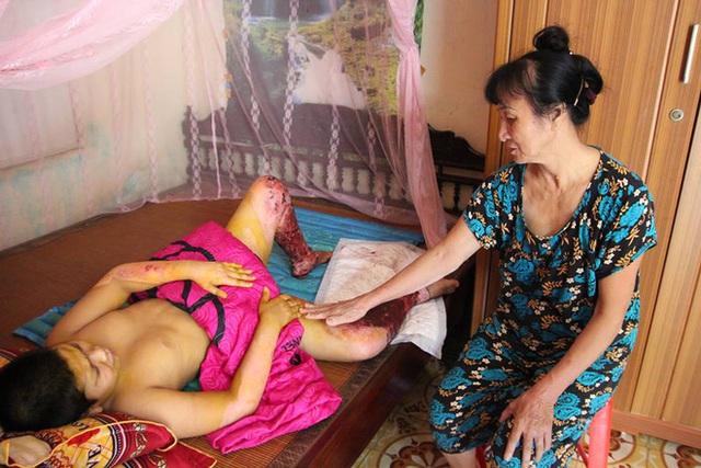 Cháu Nguyễn Mạnh Hùng (11 tuổi bị nặng nặng hơn anh cũng đã tạm ổn định sức khỏe)