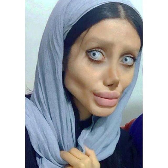 …nhưng trải qua 50 cuộc phẫu thuật, Sahar vẫn chỉ được đánh giá là phiên bản lỗi