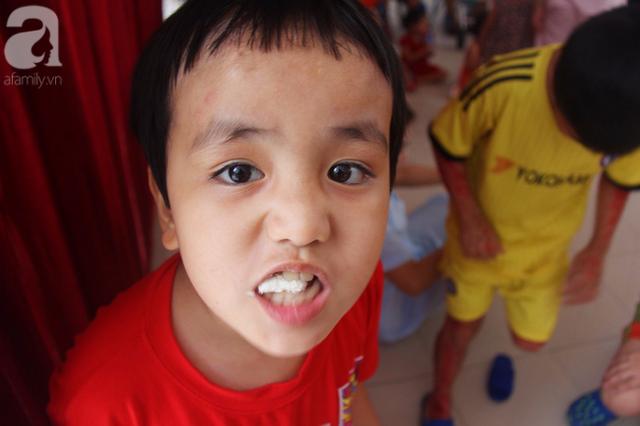 Bé trai khoảng 5 tuổi thường hay có những biểu hiện khờ khạo, chậm phát triển