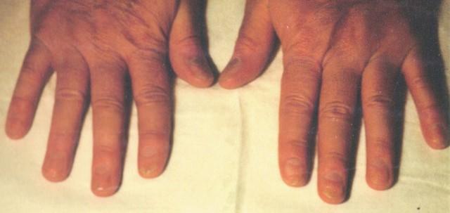 Sau 4 tháng điều trị với dòng sản phẩm Dr Michaels® (Soratinex® và Nailinex®)