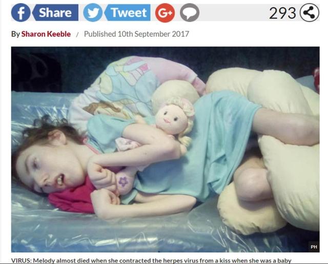 Bé Melody bị liệt bên trái vì bị lây vi rút Herpes từ khi mới sinh bởi nụ hôm của người đến thăm. ẢNH CHỤP MÀN HÌNH DAILY STAR SUNDAY