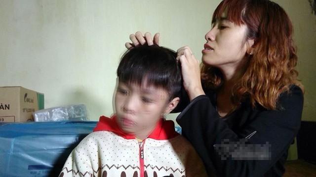 Vết đỏ dài trên đầu cháu bé nghi bị bố và mẹ kế bạo hành. Ảnh: Đoàn Bổng