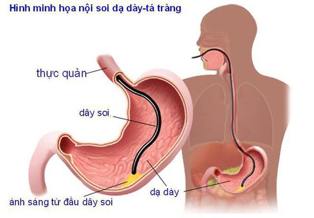 6 nhóm người có nguy cơ cao mắc ung thư dạ dày, đừng để khối u làm tổ rồi mới đi khám - Ảnh 3.