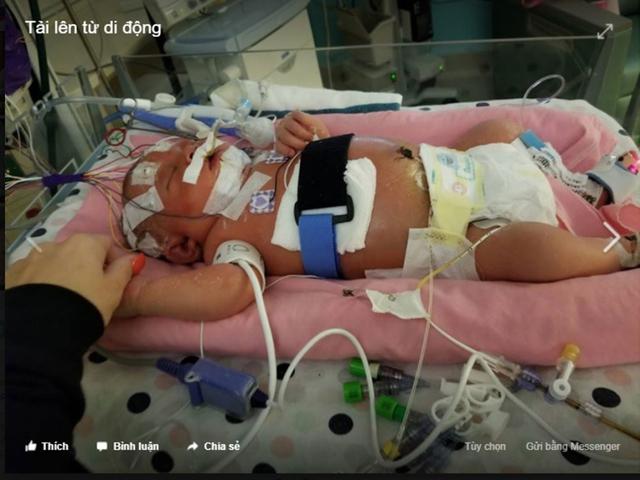 Bé Mariana Sifrit khi còn nằm điều trị, chăm sóc đặc biệt tại bệnh viện. ẢNH CHỤP MÀN HÌNH FACEBOOK NICOLE SIFRIT, MẸ BÉ, CHIA SẺ