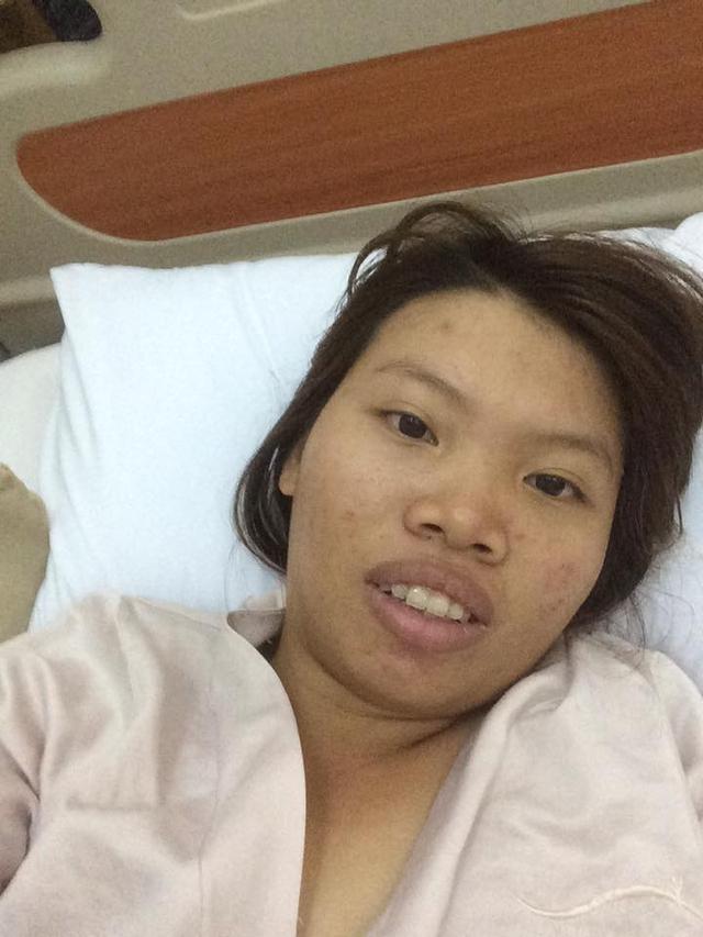 Bà mẹ đơn thân quyết định phẫu thuật để thay đổi ngoại hình xấu xí.