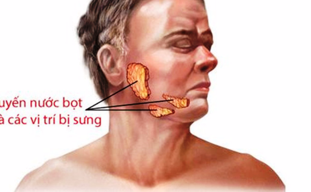 Cần phân biệt rõ các triệu chứng bệnh quai bị với viêm tuyến nước bọt.