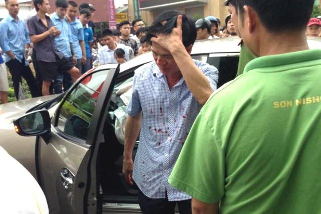 Ông Đặng Việt Khoa - Viện trưởng Viện kiểm sát nhân dân huyện Kinh Môn bước xuống xe khi trên đầu và áo có nhiều vết máu. Ảnh: Bạn đọc cung cấp