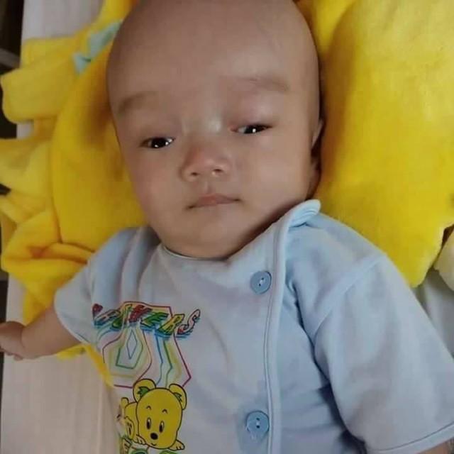 Mới hơn 3 tháng tuổi nhưng bé trai Trung Kiên đã mang trong mình chứng bệnh não úng thủy. Ảnh: CTV