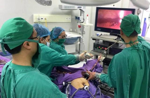 Ca phẫu thuật khối u xơ tử cung lớn bất thường. Ảnh: Đ.Tùy
