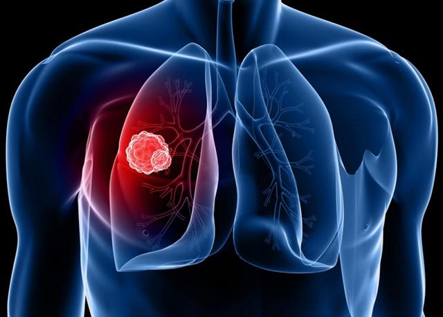 Ung thư phổi có thể chữa khỏi nếu phát hiện ở giai đoạn sớm