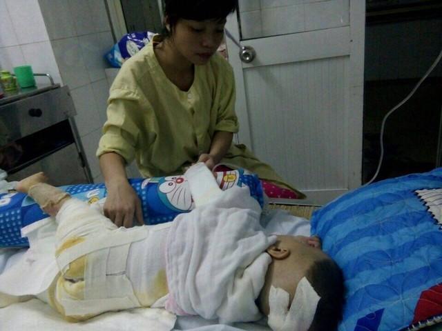 Mẹ bé Đinh Việt Hoàng chăm sóc con sau phẫu thuật cấy ghép da. Ảnh: Dinh Phong.