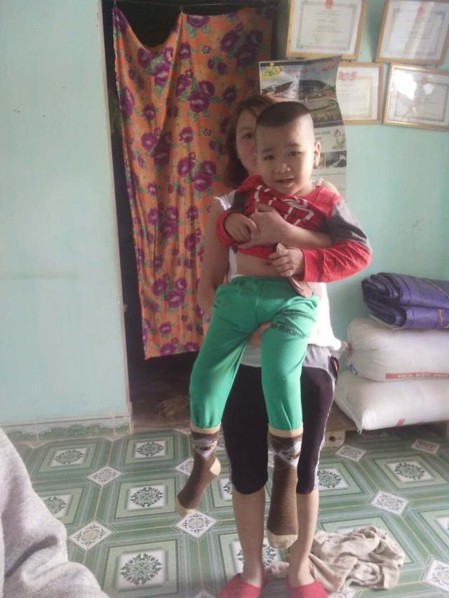 Cơn đau bụng kéo dài 7 ngày khiến sức khỏe bé Nguyễn Hoàng Long (Thôn Công, thị trấn Đà Bắc, huyện Đà Đắc, tỉnh Hòa Bình) sa sút. Đáng lo hơn, đôi chân bé bị liệt, giờ đây không thể đi lại (ảnh gia đình cung cấp)