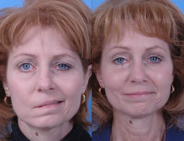 Một trong những hậu quả của đột quỵ là tổn thương dây thần kinh trên khuôn mặt.