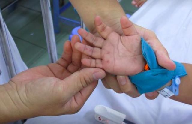 Số lượng trẻ mắc tay - chân - miệng phải nhập viện ở TP HCM tăng 50% so với tuần trước đó.