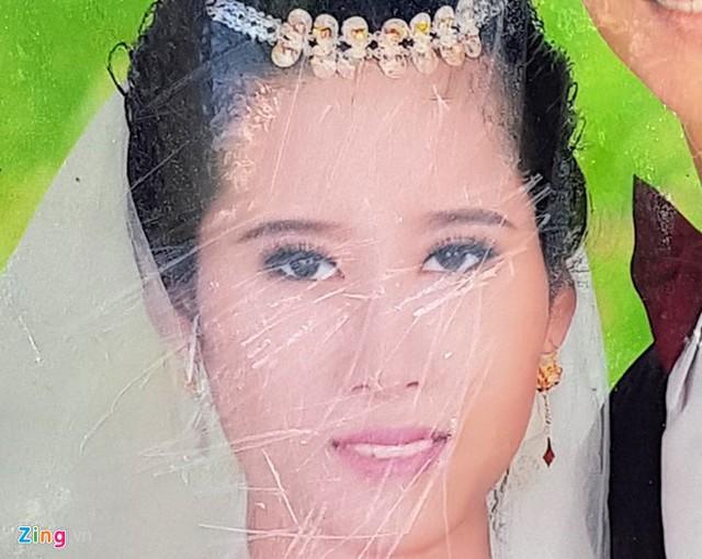 Ảnh của Nguyễn Thị Thảo bị mẹ chồng dùng vật cứng cắt nát. Ảnh gia đình cung cấp.