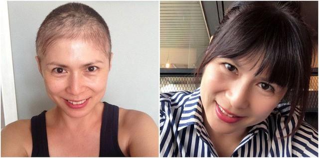 Căn bệnh ung thư vú khiến nhiều chị em sợ hãi nhưng lại bị 3 người phụ nữ nổi tiếng ở Singapore đánh gục - Ảnh 2.