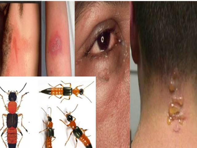 Khi bị kiến ba khoang đốt, bạn cần rửa ngay nước muối sinh lý để trung hòa chất tiết của côn trùng.     Ảnh: T.L